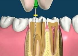 Болить зуб після видалення нерва, що робити?