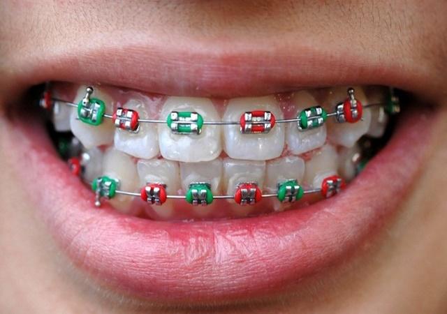 Етапи ортодонтичного лікування