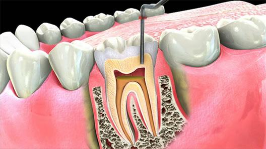 Ендодонтичне лікування зубів