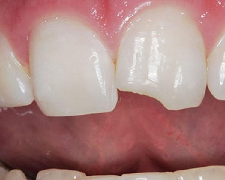 Класифікація травм зуба і методи їх лікування