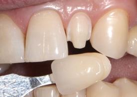 Реставрація зубів вінірами
