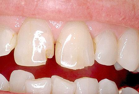 Що таке реставрація зубів