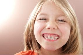 Способи вирівнювання зубів