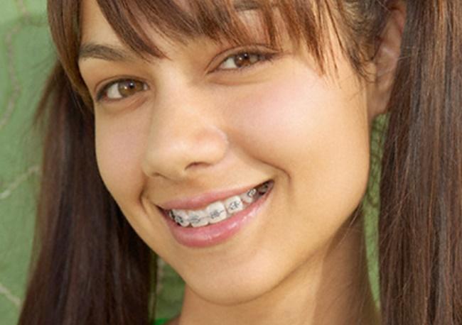 В якому віці потрібен перший візит до ортодонта?