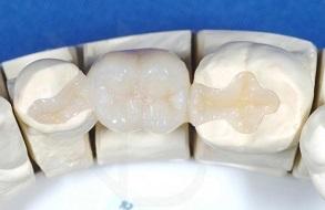 Вкладки на зуби