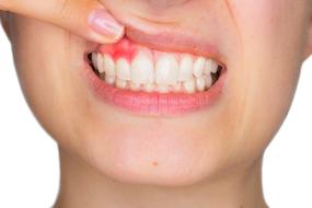Запалення зубного каналу