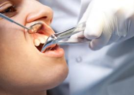 Процедура видалення зуба
