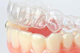 Вирівнювання зубів без брекетів